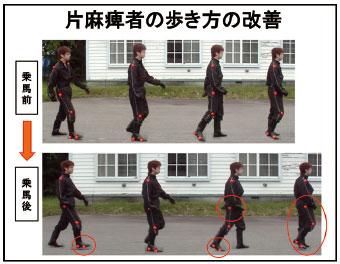 片麻痺者の歩き方